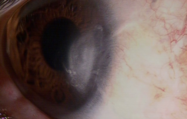 翼状片手術後 右方視 手術後